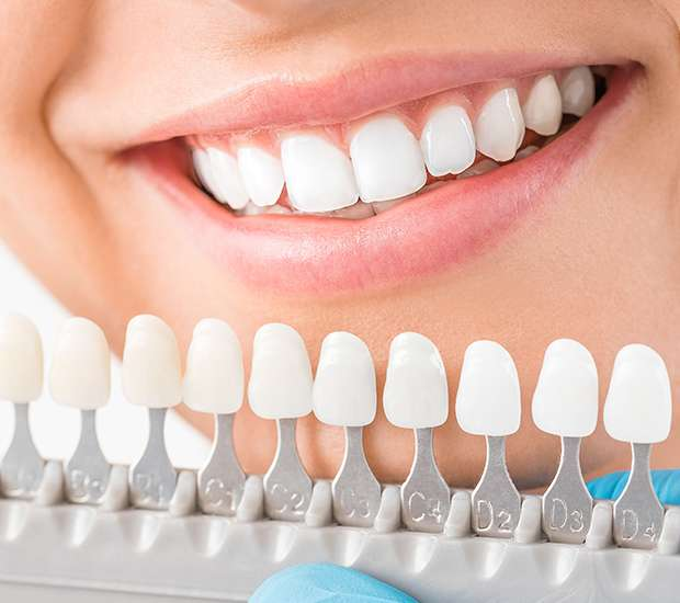 Numerous Benefits offered by Cosmetic Dentistry you should know